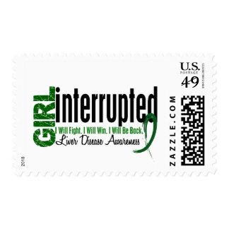 Girl Interrupted 1 Liver Disease Stamps