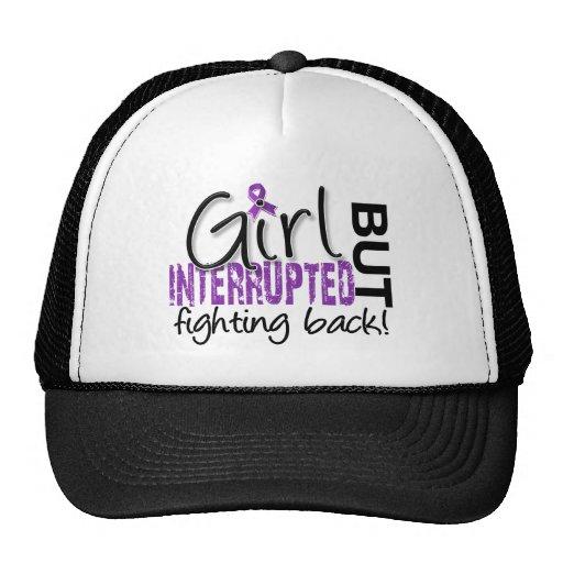 Girl Interrupted 2 Fibromyalgia Hats