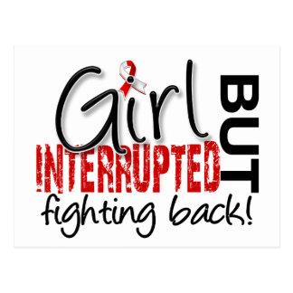 Girl Interrupted 2 Oral Cancer Postcard