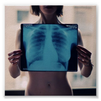 girls chest x-ray posters