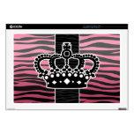 Girly princess pink and black zebra print laptop skin