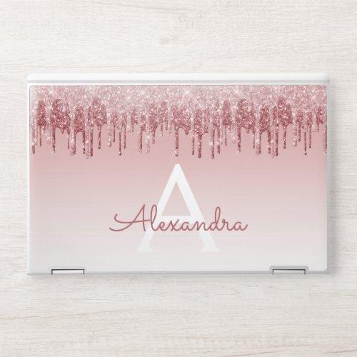Glam Pink Rose Gold Glitter Drip Monogram HP Laptop Skin