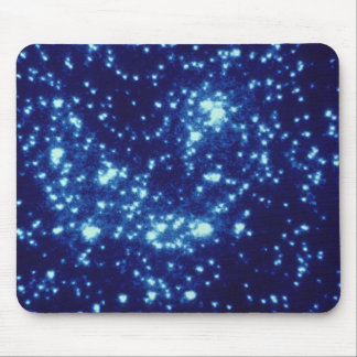 Globular Cluster Mouse Pads