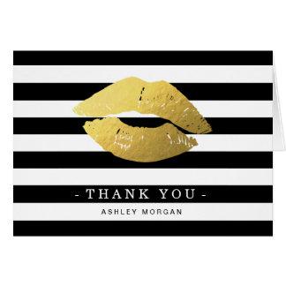 Gold Lips Black White Stripes Thank You Card