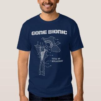 """GONE BIONIC"" Hip Replacement t-shirt"