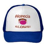 Gorra de la alopecia de los soplos