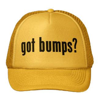 got bumps? trucker hats
