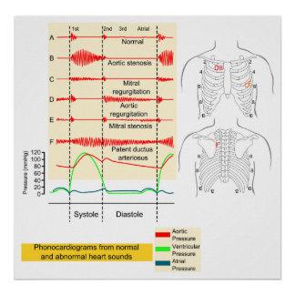 Graphically Recording of Heartbeat Sounds Diagram Poster