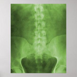 Green Digital X-Ray Art Print