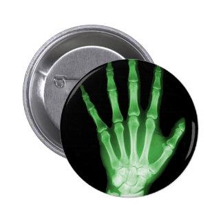 Green X-ray Skeleton Hand Pinback Button