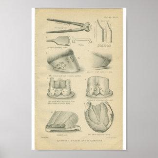 Grietas del enganche de la impresión de la anatomí impresiones