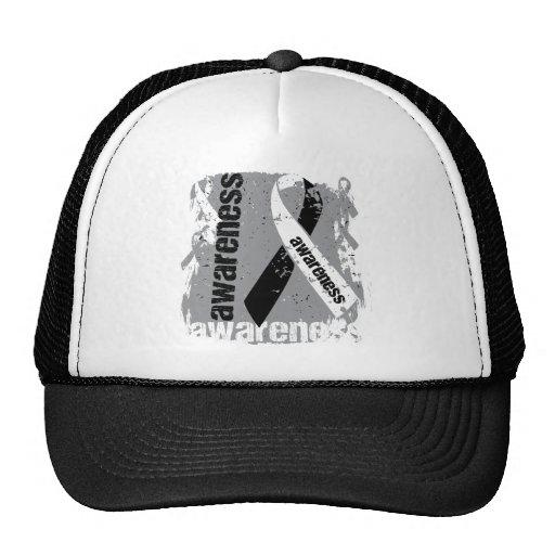 Grunge Carcinoid Cancer Awareness Trucker Hat