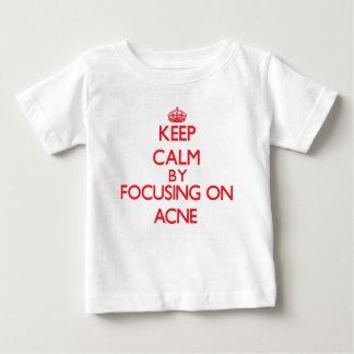 Guarde la calma centrándose en acné camisas