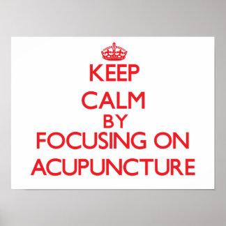 Guarde la calma centrándose en la acupuntura posters