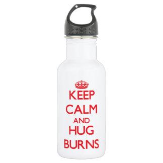 Guarde la calma y abrace las quemaduras