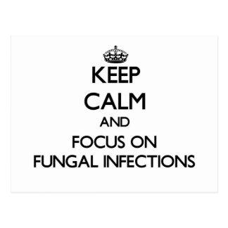 Guarde la calma y el foco en infecciones por tarjeta postal