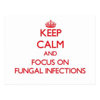 Guarde la calma y el foco en infecciones por postales