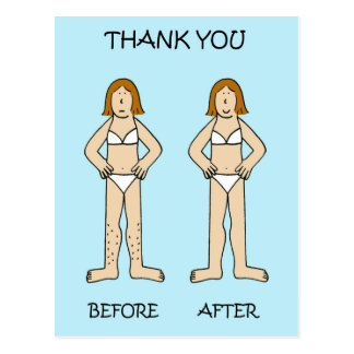 Hair removal technician thank you. postcard
