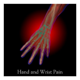 Hand and Wrist Pain Poster