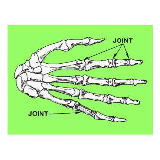 Hand Bones Joint Diagram Postcard