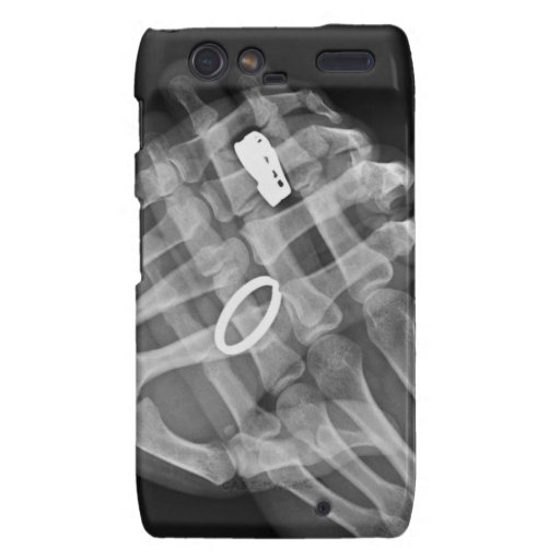 Hand Holding Motorola Droid RAZR Cover