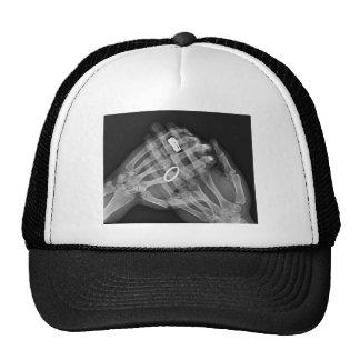 Hand Holding Trucker Hat