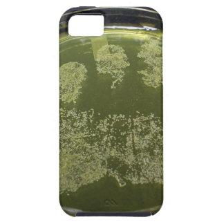Hand Petri Dish Bacteria iPhone 5 Case