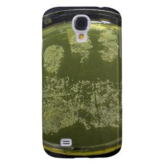Hand Petri Dish Bacteria Galaxy S4 Cover