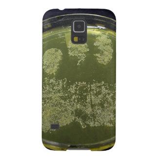 Hand Petri Dish Bacteria Galaxy S5 Case