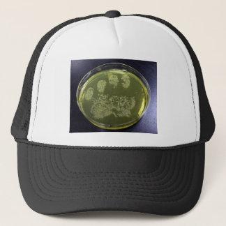 Hand Petri Dish Bacteria Trucker Hat