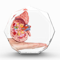 Hand showing model with inside of human kidney award