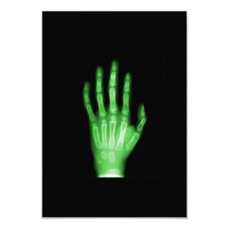 HAND SKELETON green XRAY DARK SCARY HUMAN BREAK BO Card