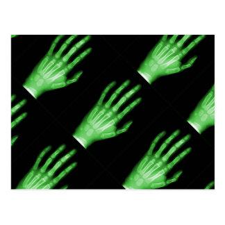 HAND SKELETON green XRAY DARK SCARY HUMAN BREAK BO Postcard