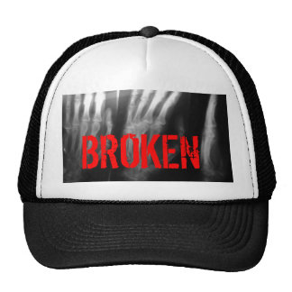 Hat with an xray of a broken hand on it. BROKEN.