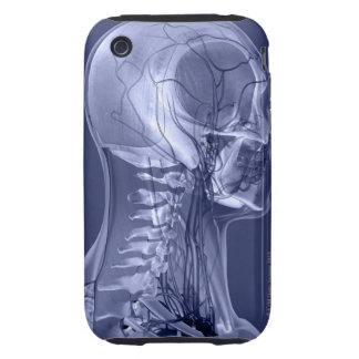 Head and Neck Blood Vessels iPhone 3 Tough Covers