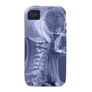Head and Neck Blood Vessels Case-Mate iPhone 4 Case