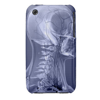 Head and Neck Blood Vessels Case-Mate iPhone 3 Case