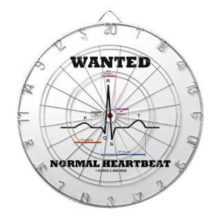 Hearbeat normal querido (electrocardiograma de tablero de dardos