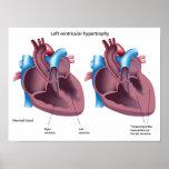 Heart hypertrophy Poster