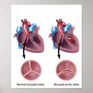 Heart valve defect Poster
