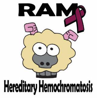 Hemocromatosis hereditaria de RAM Esculturas Fotograficas