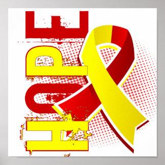 Hepatitis C de la esperanza 2 Impresiones