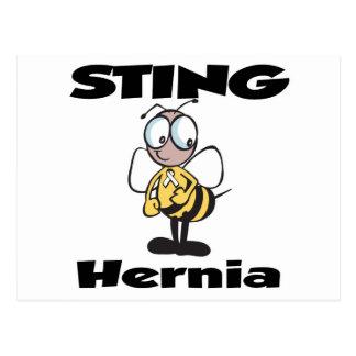 Hernia de STING Postal