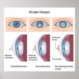 Herpes of the eye diseases Poster