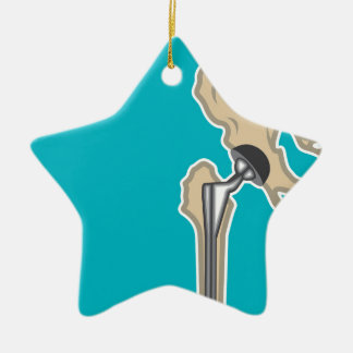Hip Joint Replacement Ceramic Ornament