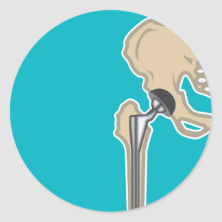 Hip Joint Replacement Classic Round Sticker