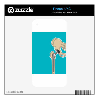 Hip Joint Replacement Decal For The iPhone 4S