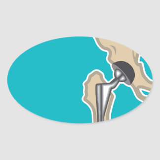 Hip Joint Replacement Oval Sticker
