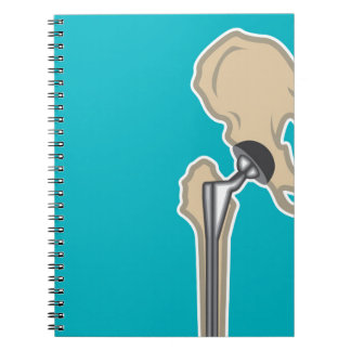 Hip Joint Replacement Spiral Notebook