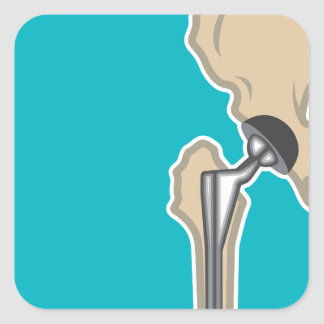 Hip Joint Replacement Square Sticker